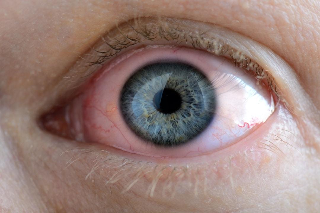 Открытоугольная глаукома - причины, симптомы, диагностика ...